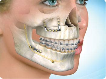 maxillio facial surgeon jpg 350x263