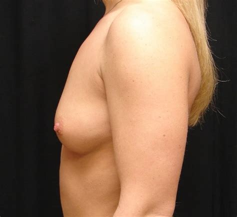 Breast augmentation in virginia beach jpg 636x581